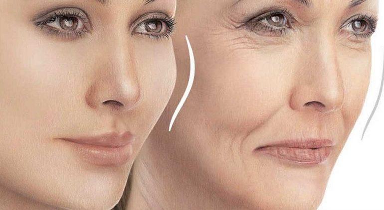 نتایج تزریق ژل صورت تا چه اندازه ماندگاری دارد؟