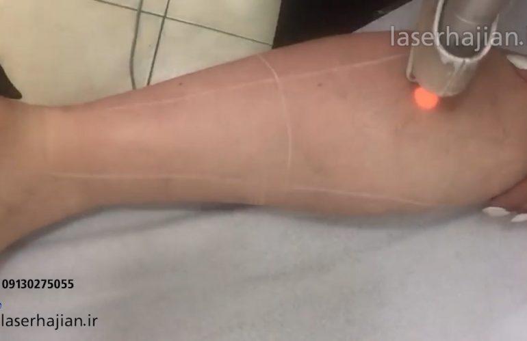 لیزر موهای زائد نواحی ساق پا