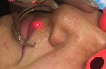 پاک کردن تاتو با لیزر