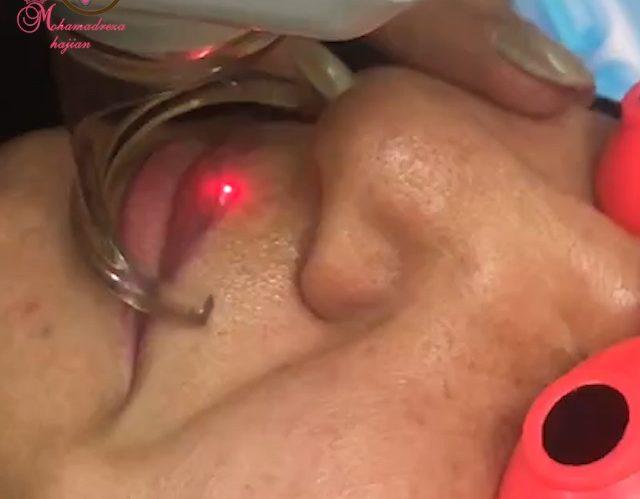 فیلم پاک کردن تاتو با لیزر