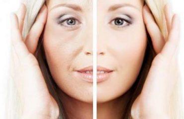 شفاف کردن پوست با لیزر