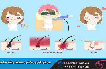 اثرات لیزر بر روی موهای زائد چیست؟