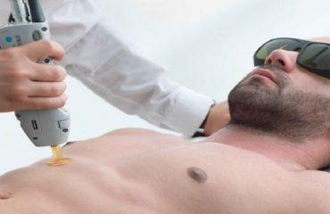 آیا لیزر مو های زائد مضراتی هم دارد؟
