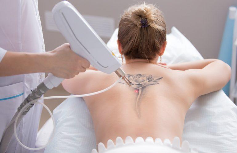 بعد از لیزر پاک کردن تاتو چه مراقبتی لازم دارد ؟