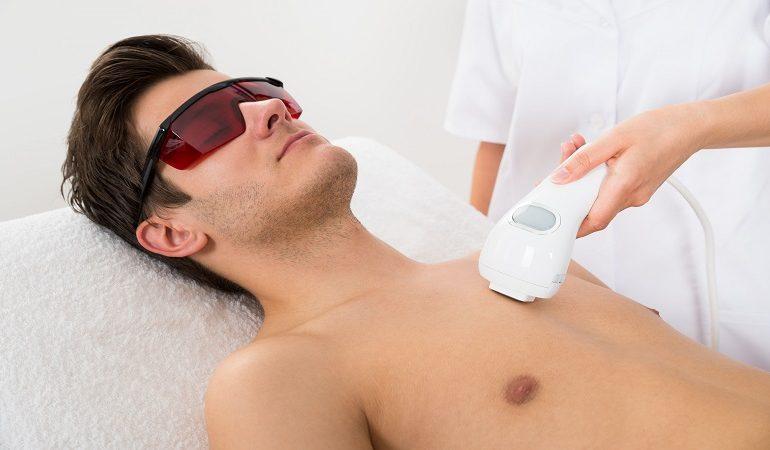 کاربرد لیزر موهای زائد مردان