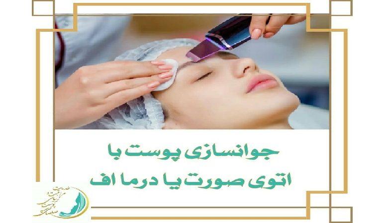 بهترین لیزر موی زاید اصفهان جوانسازی پوست با اتوی صورت یا درما اف