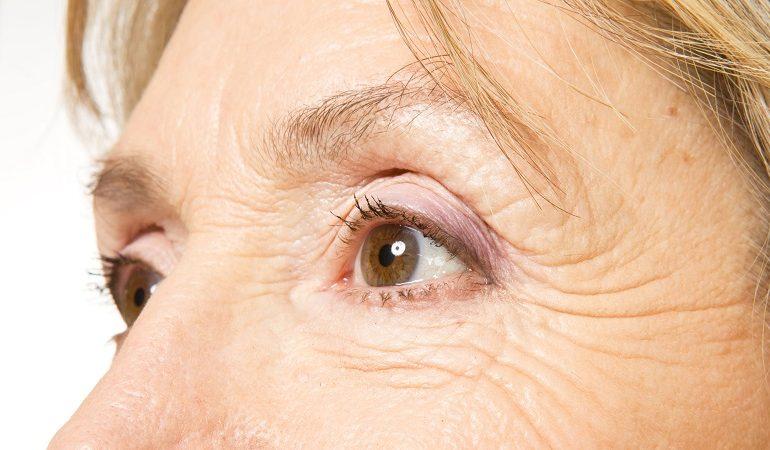 چه مواردی در چروک دور چشم موثر هستند ؟