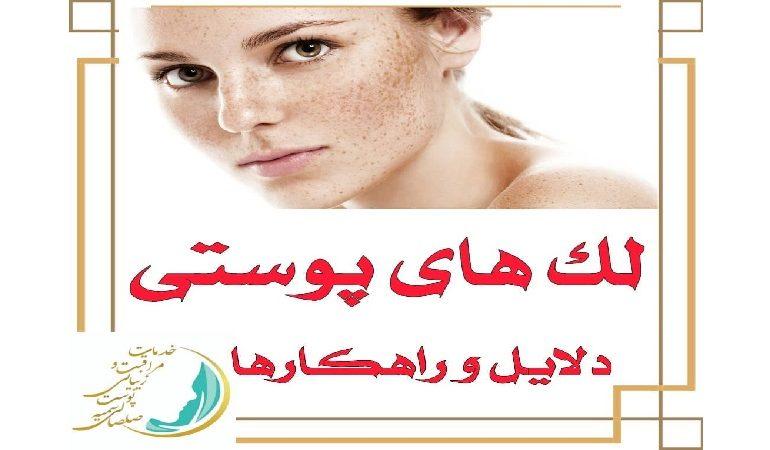 دلایل بروز لک پوستی و راهکارهای درمان