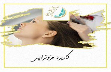بهترین اسکین کر اصفهان | کاربرد مزوتراپی
