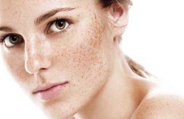 درمان لک با روش اسید تراپی | بهترین لیزر موی زائد اصفهان