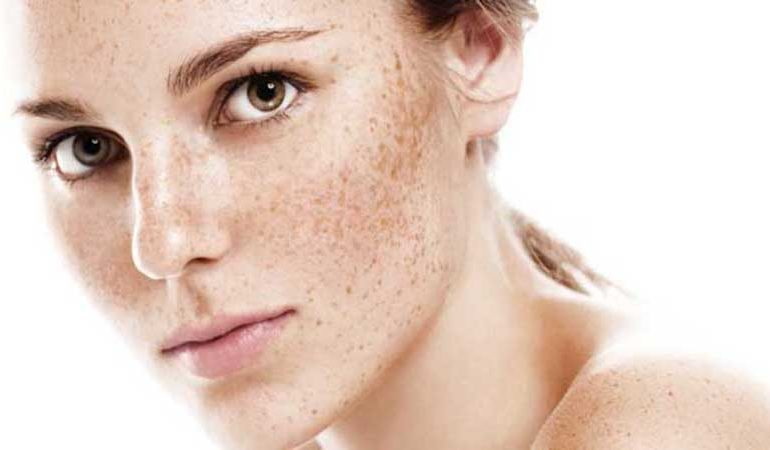 درمان لک با روش اسید تراپی   بهترین لیزر موی زائد اصفهان