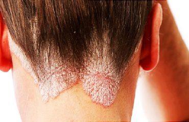بهترین اسکین کر اصفهان | درمان بیماری پوستی پسوریازیس