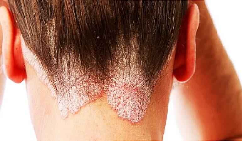 درمان بیماری پوستی پسوریازیس