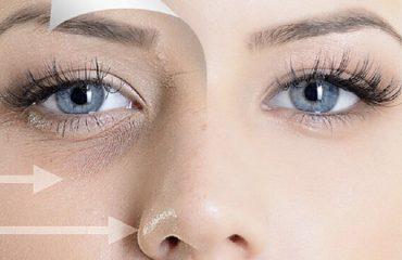 بهترین درمان چروک و تیرگی زیر چشم | بهترین لیزر موهای زائد اصفهان
