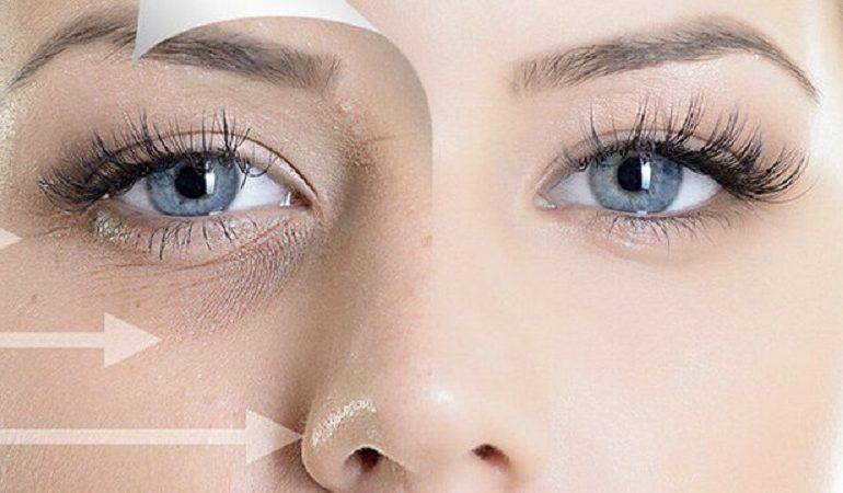 بهترین درمان چروک و تیرگی زیر چشم