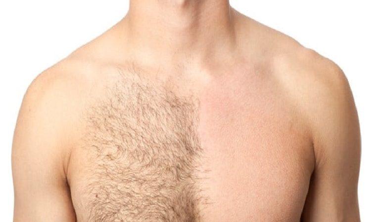 هدف استفاده از لیزر موی زاید آقایان