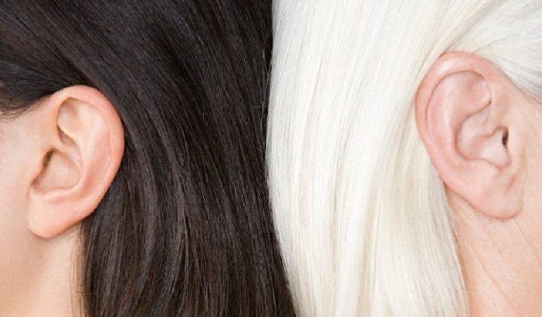 تکنولوژی لیزر برای از بین بردن موهای سفید و خاکستری