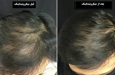 تاثیرات میکرونیدلینگ مو   بهترین لیزر موهای زائد اصفهان