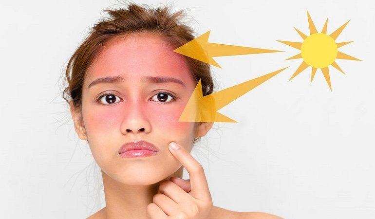 پیشگیری و درمان تاول آفتاب سوختگی