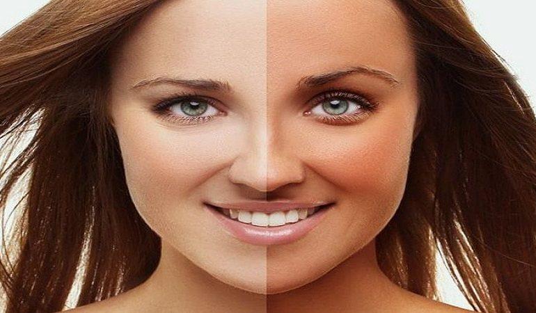 عوامل موثر در کدر و تیره شدن پوست