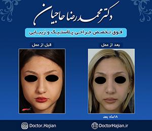 doctorhajian-180514122312