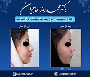 doctorhajian-180514123756