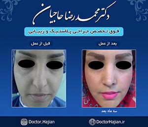 doctorhajian-180514123904