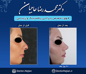 doctorhajian-180525163936