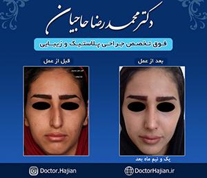 doctorhajian-180525163958