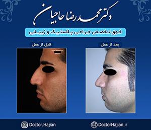 doctorhajian-180525164511