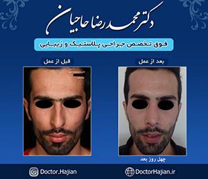 doctorhajian-180525164610