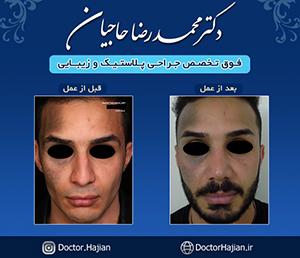 doctorhajian-180525164700