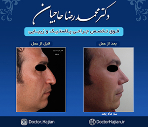 doctorhajian-180525183937