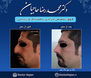 doctorhajian-180525184528