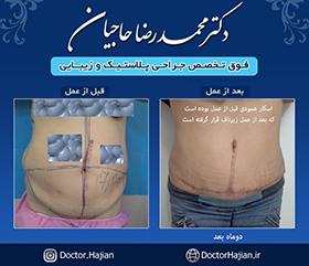 doctorhajian-180525185838