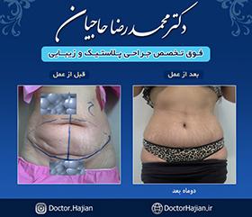 doctorhajian-180525190316