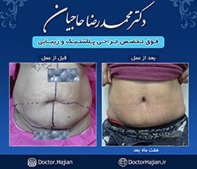 doctorhajian-180525190506