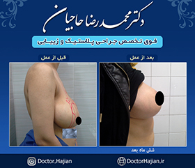 doctorhajian-180525190748