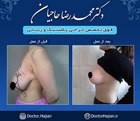 doctorhajian-180525191109