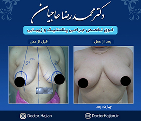 doctorhajian-180525191133