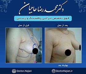 doctorhajian-180525191159