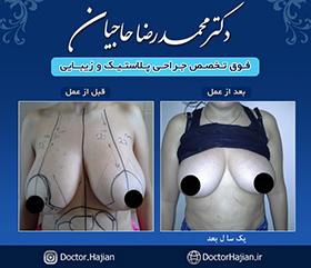 doctorhajian-180525191325
